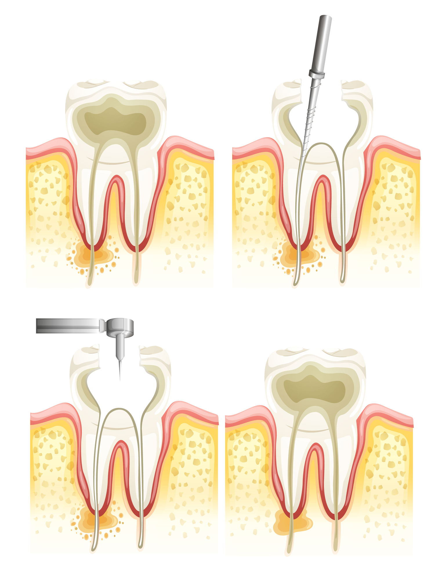 Who is the best dentist for a root canal in Doral?