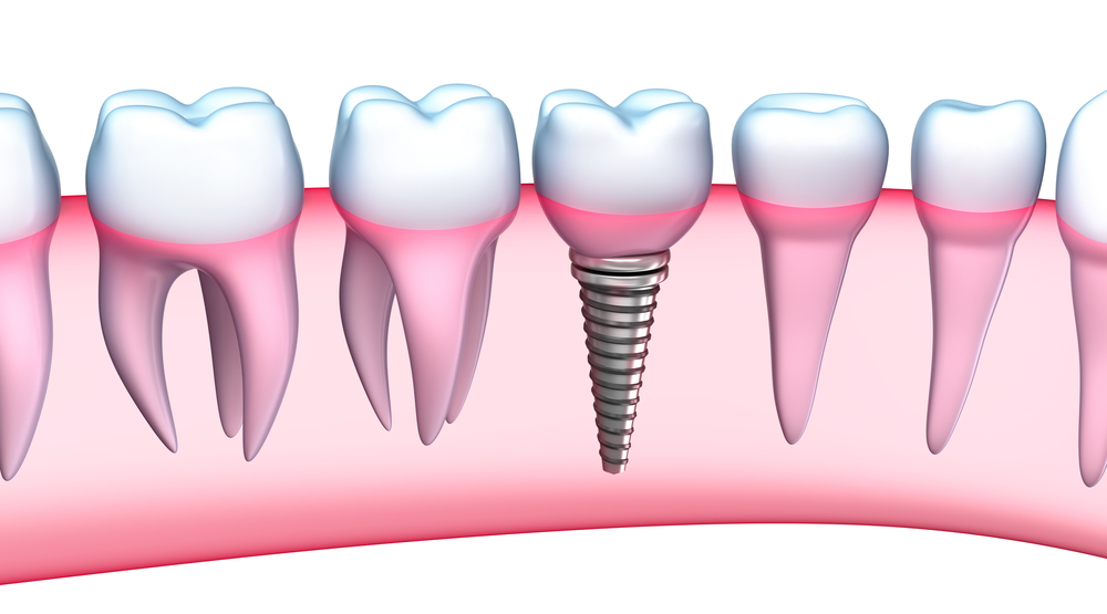 Where can I get dental implants in Doral?