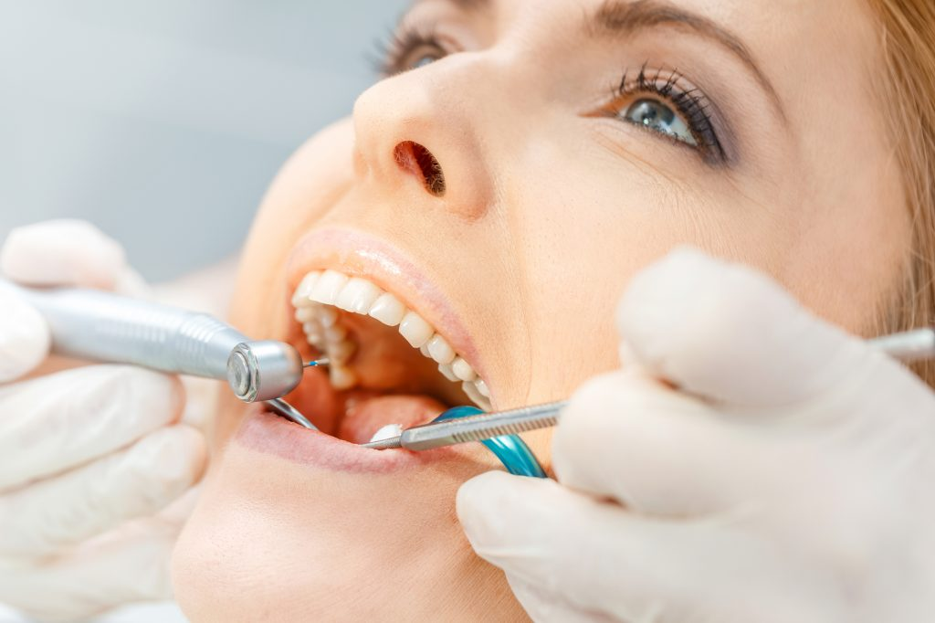 What are the benefits of a tooth crown in Doral?